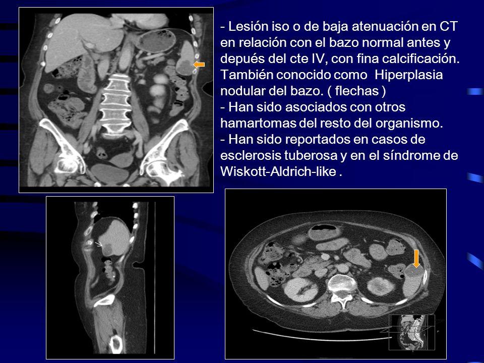 Hemangiopericitoma Es bien conocido que el hemangiopericitoma tiene un alto potencial maligno Es una rara lesión vascular que parece originarse de los pericitos de Zimmerman.