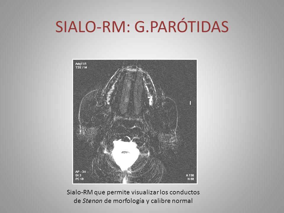 SIALO-RM: G.PARÓTIDAS Sialo-RM que permite visualizar los conductos de Stenon de morfología y calibre normal