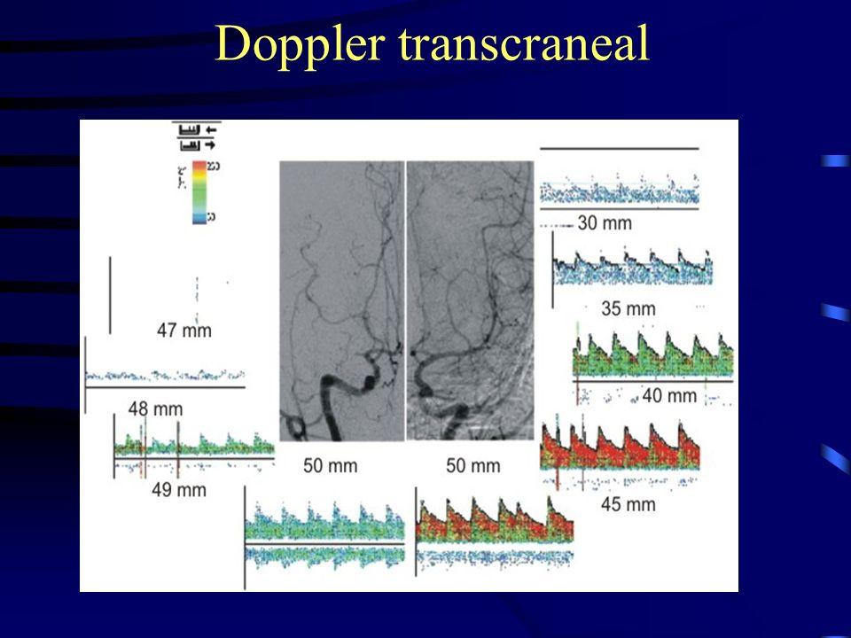 . Exploración normal Eco Doppler Color transcraneal por ventana transtemporal ( en paciente nº 1 ), a nivel de Arteria Cerebral Media derecha, con registros de velocidad dentro de la normalidad inferiores a 200 cms/ seg.