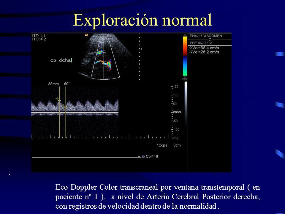 Exploración dudosa Eco Doppler Color transcraneal por ventana transtemporal ( en paciente nº 2 ), a nivel de Arteria Cerebral Media izda, con registros de velocidad anormalmente altos, pero dudosos.