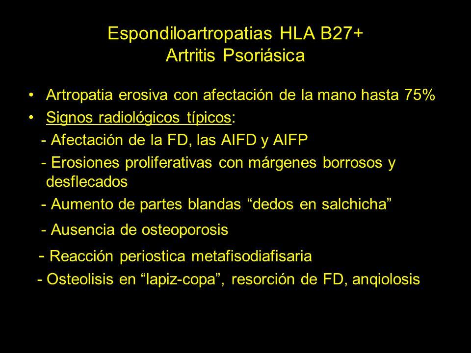 Espondiloartropatias HLA B27+ Artritis Psoriásica Artropatia erosiva con afectación de la mano hasta 75% Signos radiológicos típicos: - Afectación de