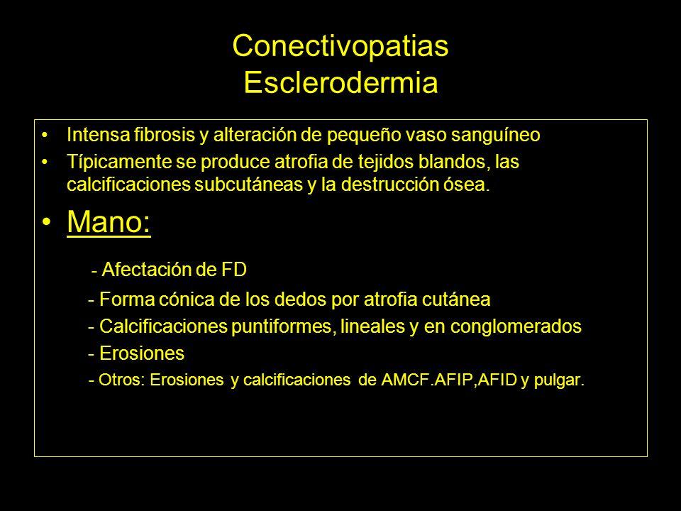 Conectivopatias Esclerodermia Intensa fibrosis y alteración de pequeño vaso sanguíneo Típicamente se produce atrofia de tejidos blandos, las calcifica