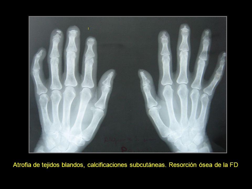 Atrofia de tejidos blandos, calcificaciones subcutáneas. Resorción ósea de la FD