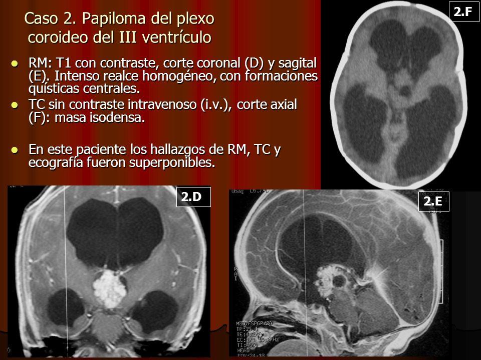 Caso 2. Papiloma del plexo coroideo del III ventrículo RM: T1 con contraste, corte coronal (D) y sagital (E). Intenso realce homogéneo, con formacione