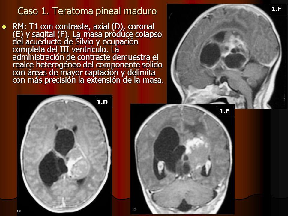 RM: T1 con contraste, axial (D), coronal (E) y sagital (F). La masa produce colapso del acueducto de Silvio y ocupación completa del III ventrículo. L