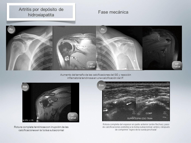Artritis por depósito de hidroxiapatita Fase mecánica Aumento del tamaño de las calcificaciones del SE y reacción inflamatoria tendinosa en una calcif