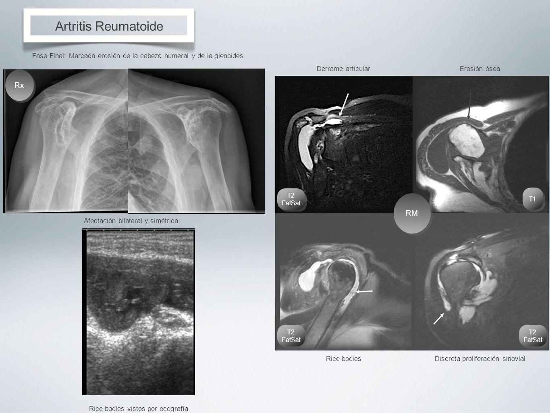 Artritis Reumatoide Fase Final: Marcada erosión de la cabeza humeral y de la glenoides. Afectación bilateral y simétrica RM Derrame articularErosión ó