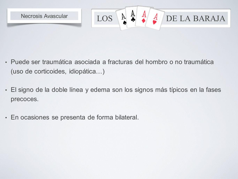 Puede ser traumática asociada a fracturas del hombro o no traumática (uso de corticoides, idiopática…) El signo de la doble línea y edema son los sign