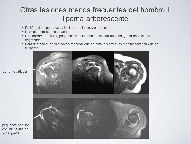 Otras lesiones menos frecuentes del hombro I: lipoma arborescente Proliferación lipomatosa villositaria de la sinovial articular. Normalmente es secun