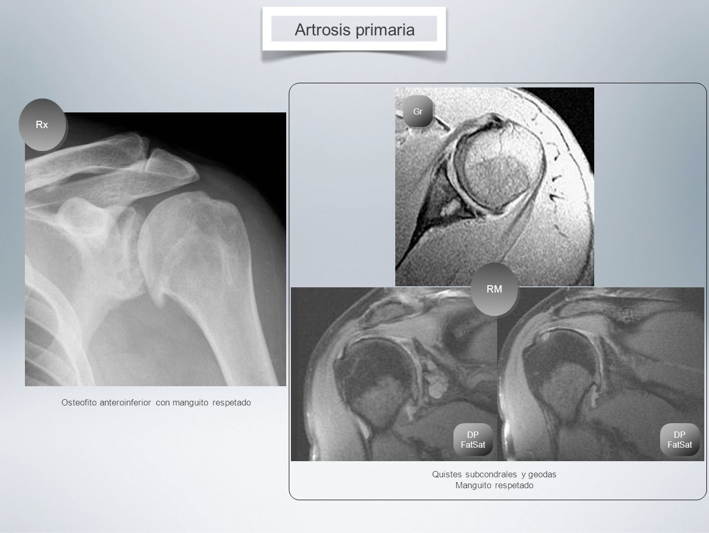 Osteofito anteroinferior con manguito respetado Artrosis primaria Rx Quistes subcondrales y geodas Manguito respetado RM DP FatSat Gr