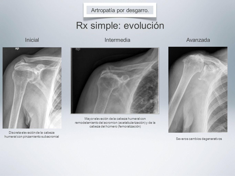 Artropatía por desgarro. Rx simple: evolución InicialIntermediaAvanzada Discreta elevación de la cabeza humeral con pinzamiento subacromial Mayor elev