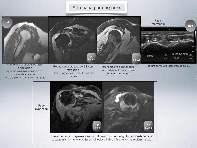 Artropatía por desgarro. Severos cambios degenerativos con rotura masiva del manguito, pérdida del espacio subacromial, derrame articular con sinoviti
