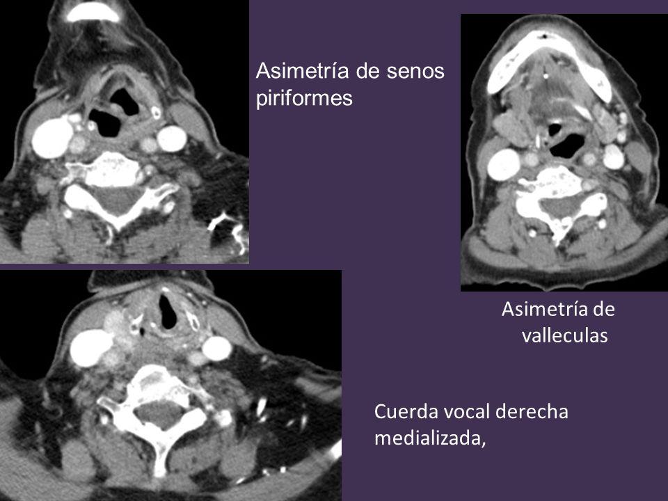 Asimetría de valleculas Asimetría de senos piriformes Cuerda vocal derecha medializada,