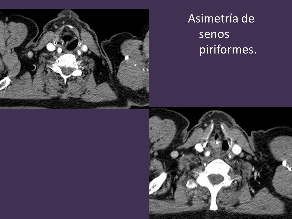 Asimetría de senos piriformes.