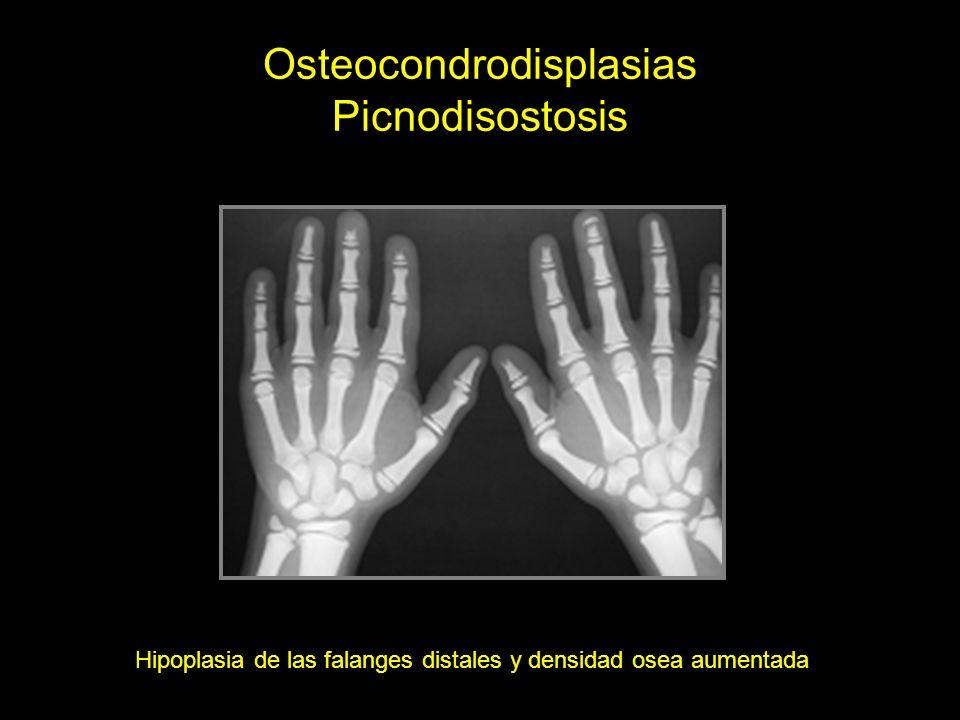 Osteocondrodisplasias Picnodisostosis Hipoplasia de las falanges distales y densidad osea aumentada