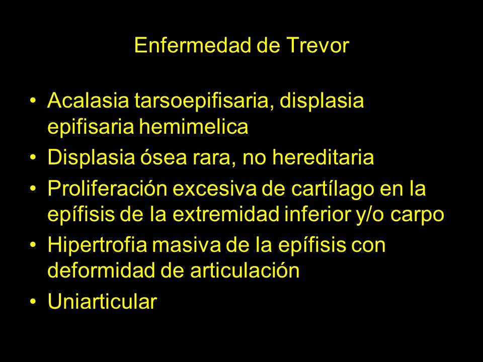 Enfermedad de Trevor Acalasia tarsoepifisaria, displasia epifisaria hemimelica Displasia ósea rara, no hereditaria Proliferación excesiva de cartílago
