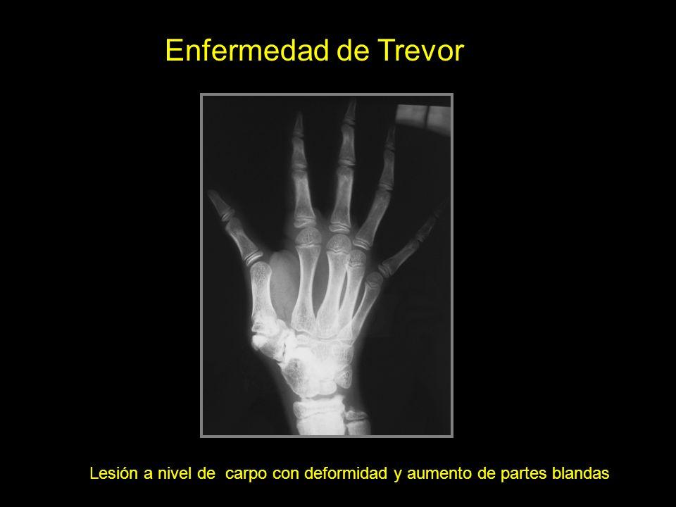 Lesión a nivel de carpo con deformidad y aumento de partes blandas Enfermedad de Trevor