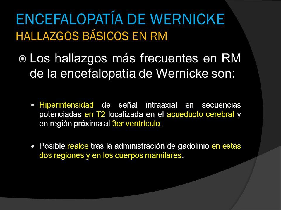 ENCEFALOPATÍA DE WERNICKE HALLAZGOS BÁSICOS EN RM Los hallazgos más frecuentes en RM de la encefalopatía de Wernicke son: Hiperintensidad de señal int