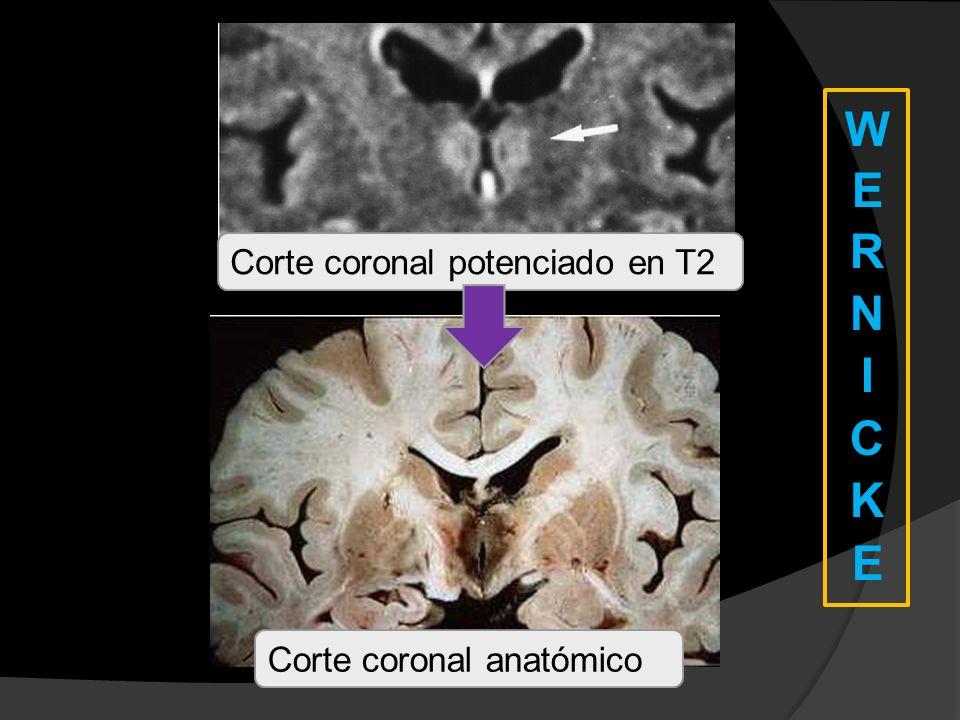 Corte coronal potenciado en T2 Corte coronal anatómico