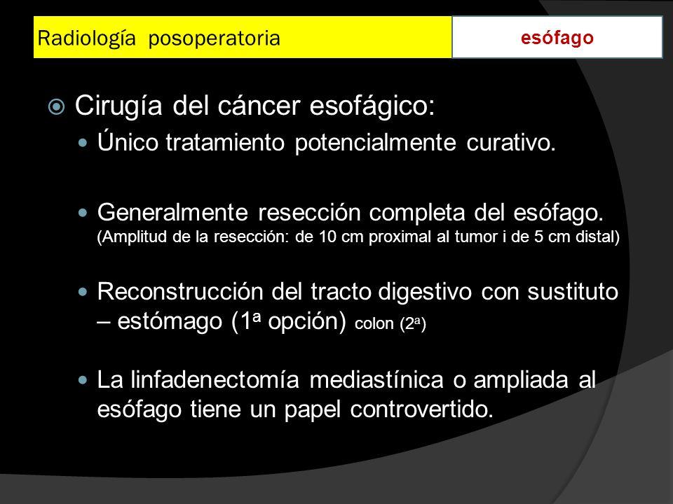 Radiología posoperatoria esófago Cirugía del cáncer esofágico: Único tratamiento potencialmente curativo. Generalmente resección completa del esófago.