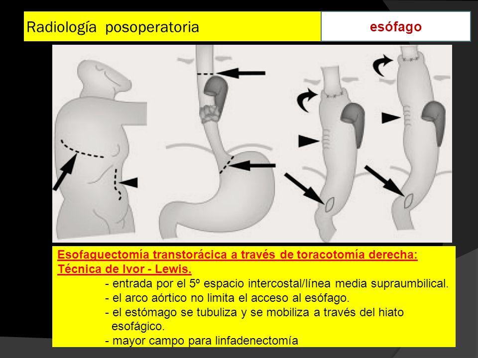 Radiología posoperatoria esófago Esofaguectomía transtorácica a través de toracotomía derecha: Técnica de Ivor - Lewis. - entrada por el 5º espacio in