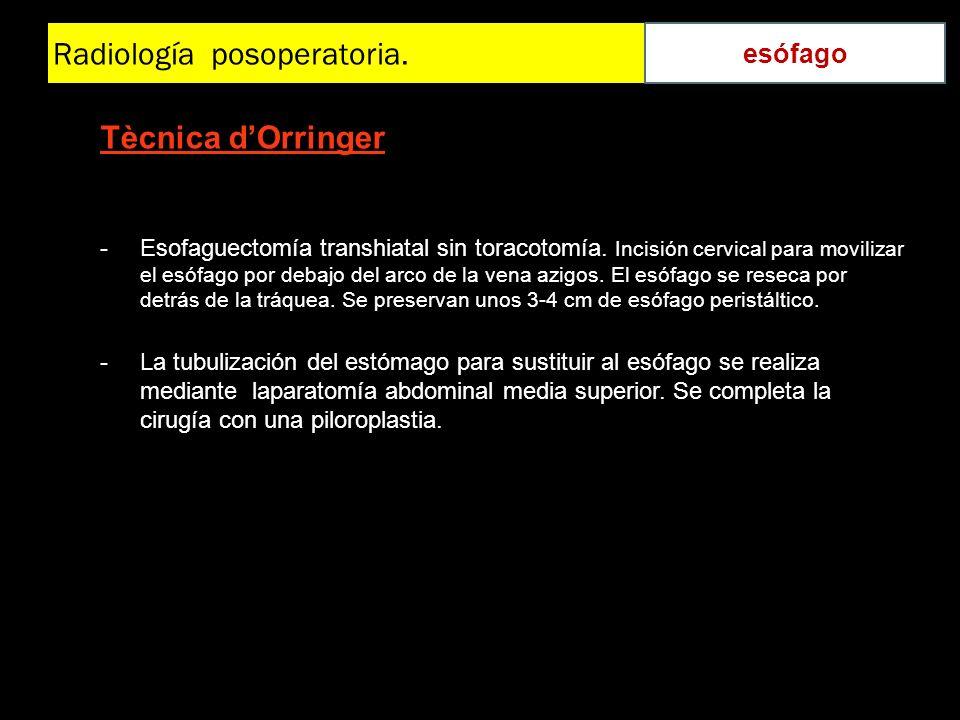 Radiología posoperatoria. esófago Tècnica dOrringer -Esofaguectomía transhiatal sin toracotomía. Incisión cervical para movilizar el esófago por debaj