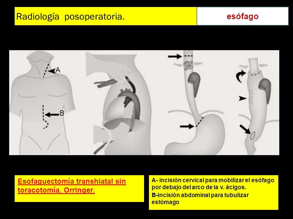 Radiología posoperatoria. Esofaguectomía transhiatal sin toracotomía. Orringer. A- incisión cervical para mobilizar el esófago por debajo del arco de