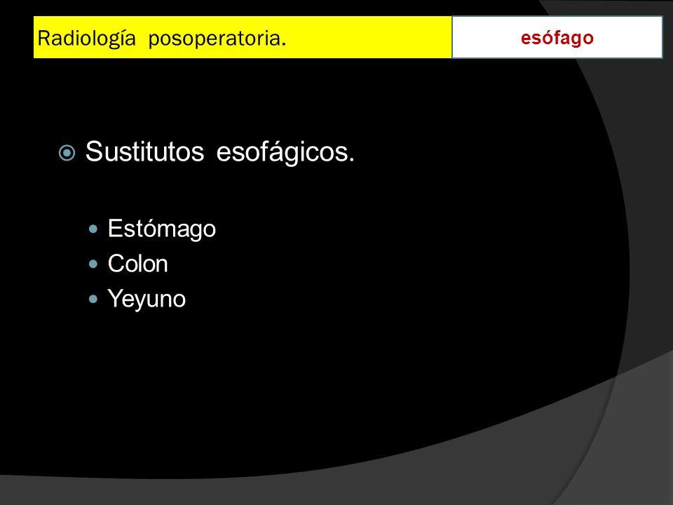 Radiología posoperatoria. esófago Sustitutos esofágicos. Estómago Colon Yeyuno