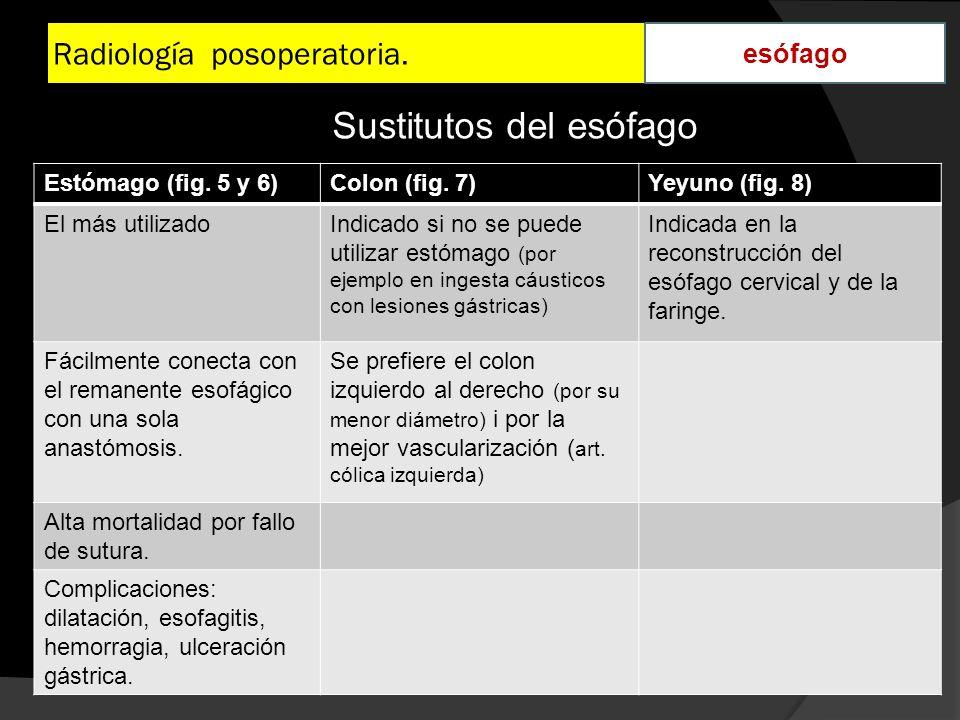 Radiología posoperatoria. esófago Estómago (fig. 5 y 6)Colon (fig. 7)Yeyuno (fig. 8) El más utilizadoIndicado si no se puede utilizar estómago (por ej