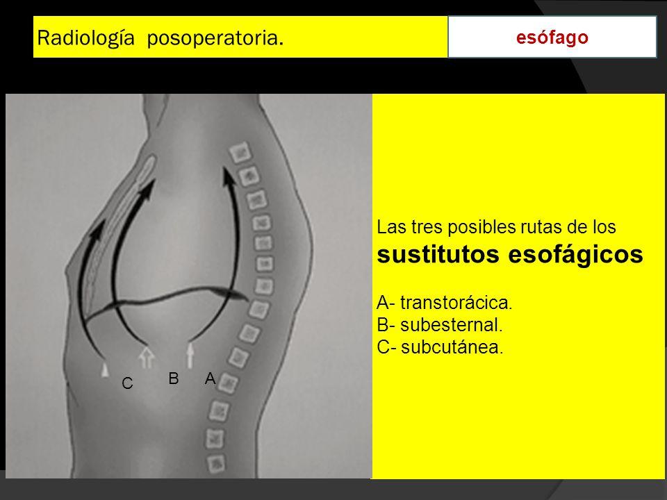 Radiología posoperatoria. esófago Las tres posibles rutas de los sustitutos esofágicos A- transtorácica. B- subesternal. C- subcutánea. AB C