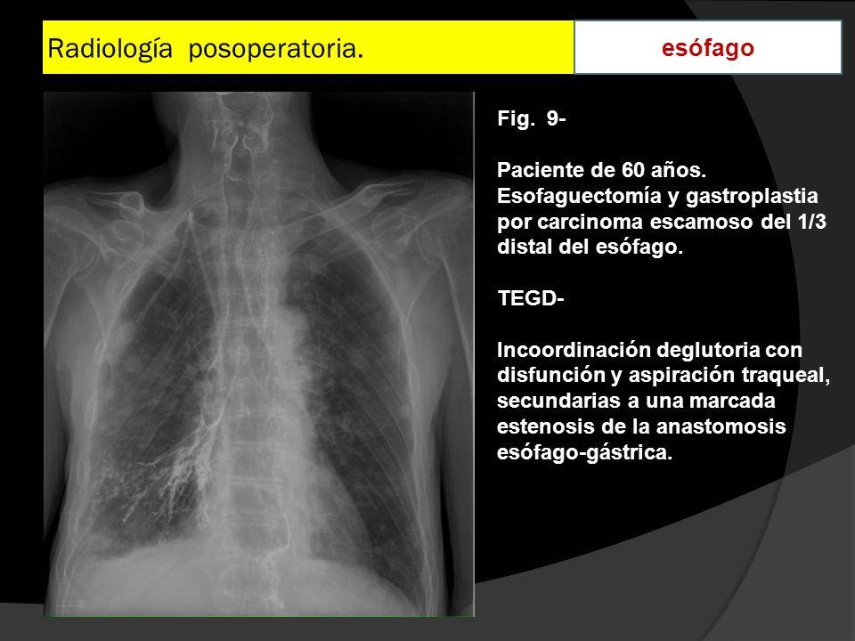 Radiología posoperatoria. esófago Fig. 9- Paciente de 60 años. Esofaguectomía y gastroplastia por carcinoma escamoso del 1/3 distal del esófago. TEGD-