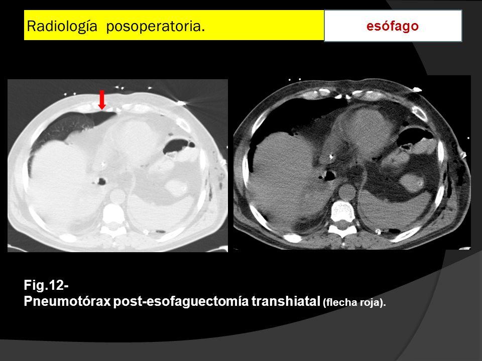 Radiología posoperatoria. esófago Fig.12- Pneumotórax post-esofaguectomía transhiatal (flecha roja).