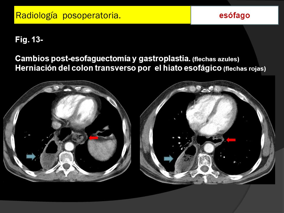 Radiología posoperatoria. esófago Fig. 13- Cambios post-esofaguectomía y gastroplastia. (flechas azules) Herniación del colon transverso por el hiato