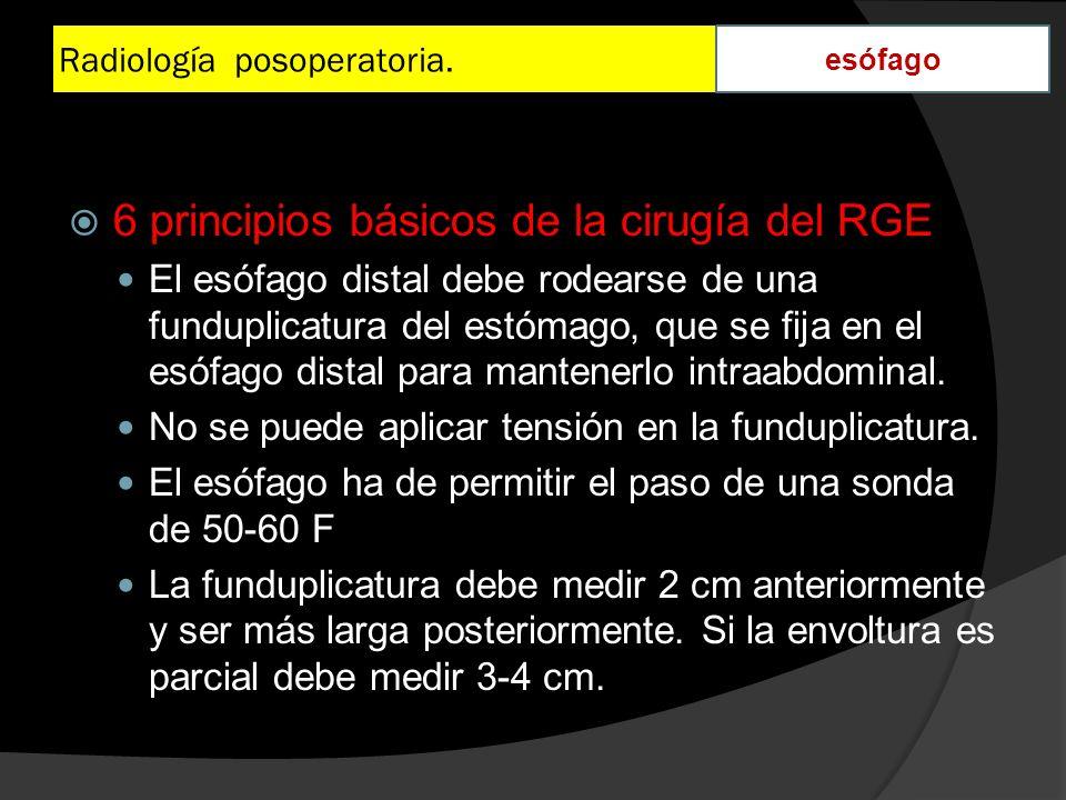 Radiología posoperatoria. esófago 6 principios básicos de la cirugía del RGE El esófago distal debe rodearse de una funduplicatura del estómago, que s