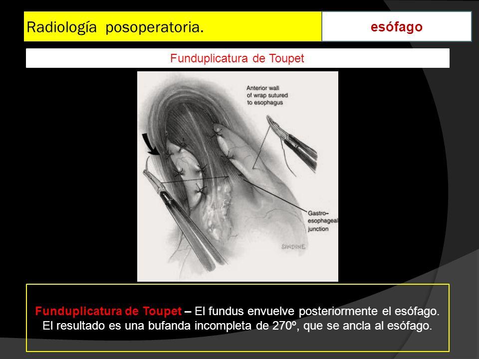 Radiología posoperatoria. esófago Funduplicatura de Toupet – El fundus envuelve posteriormente el esófago. El resultado es una bufanda incompleta de 2