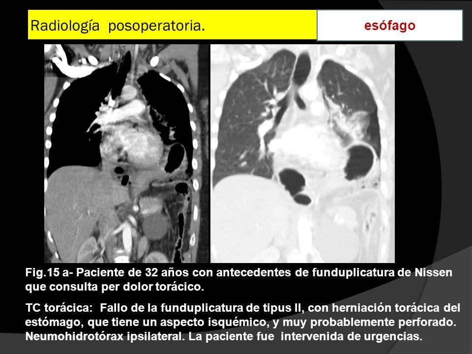 Radiología posoperatoria. esófago Fig.15 a- Paciente de 32 años con antecedentes de funduplicatura de Nissen que consulta per dolor torácico. TC torác