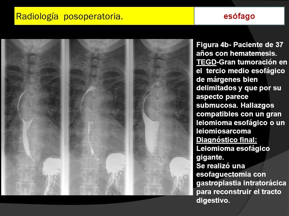 Radiología posoperatoria. esófago Figura 4b- Paciente de 37 años con hematemesis. TEGD-Gran tumoración en el tercio medio esofágico de márgenes bien d