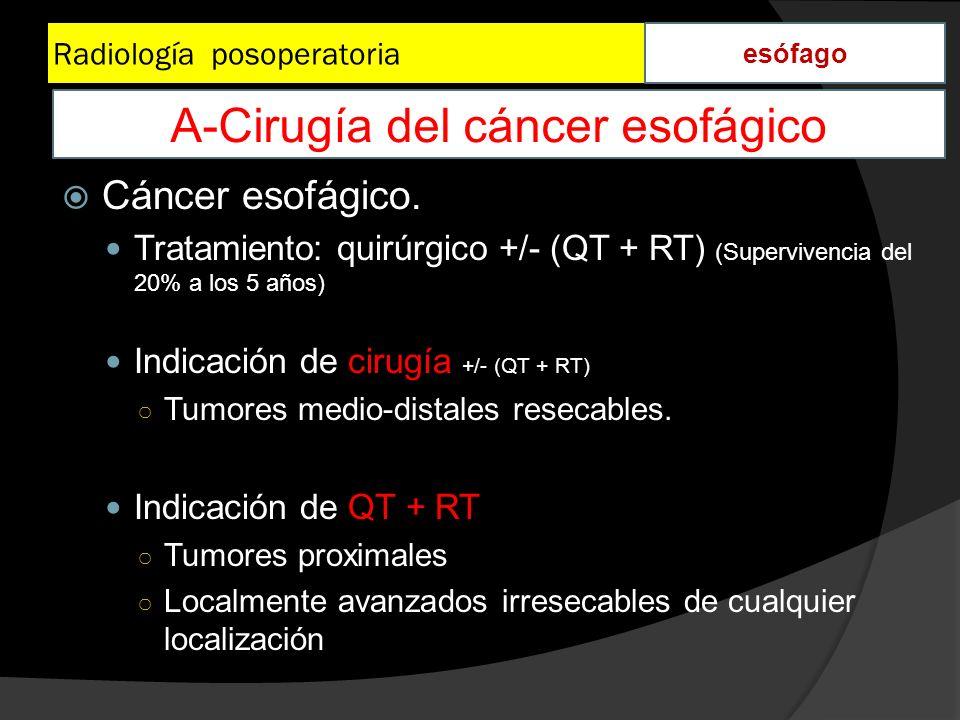 Radiología posoperatoria esófago Cáncer esofágico. Tratamiento: quirúrgico +/- (QT + RT) (Supervivencia del 20% a los 5 años) Indicación de cirugía +/