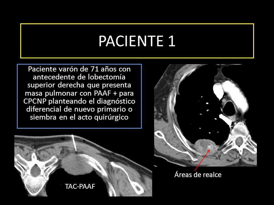 PACIENTE 1 Paciente varón de 71 años con antecedente de lobectomía superior derecha que presenta masa pulmonar con PAAF + para CPCNP planteando el dia