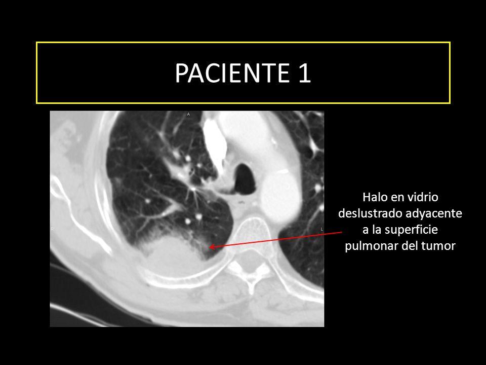 PACIENTE 1 Halo en vidrio deslustrado adyacente a la superficie pulmonar del tumor