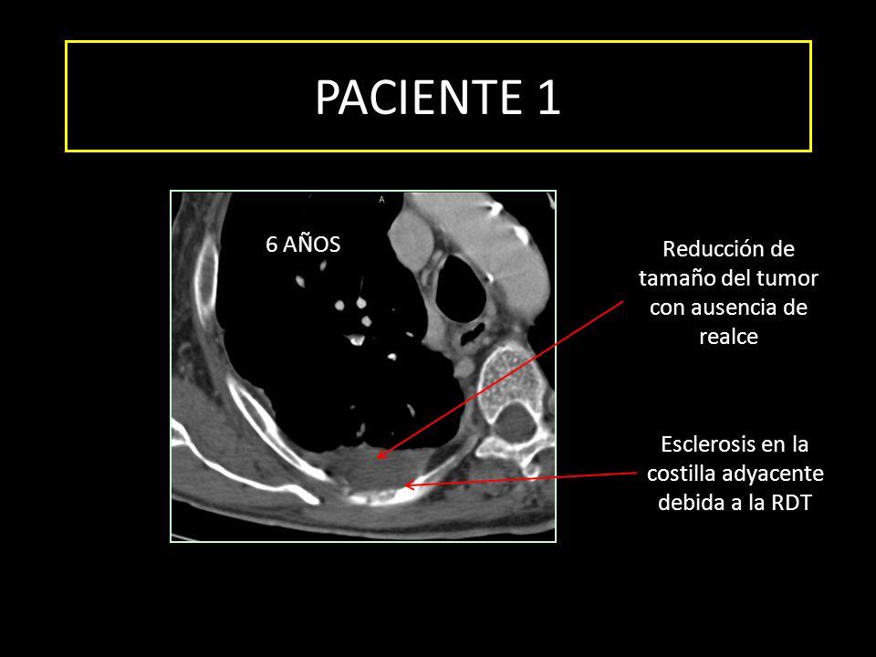 PACIENTE 1 Esclerosis en la costilla adyacente debida a la RDT Reducción de tamaño del tumor con ausencia de realce 6 AÑOS