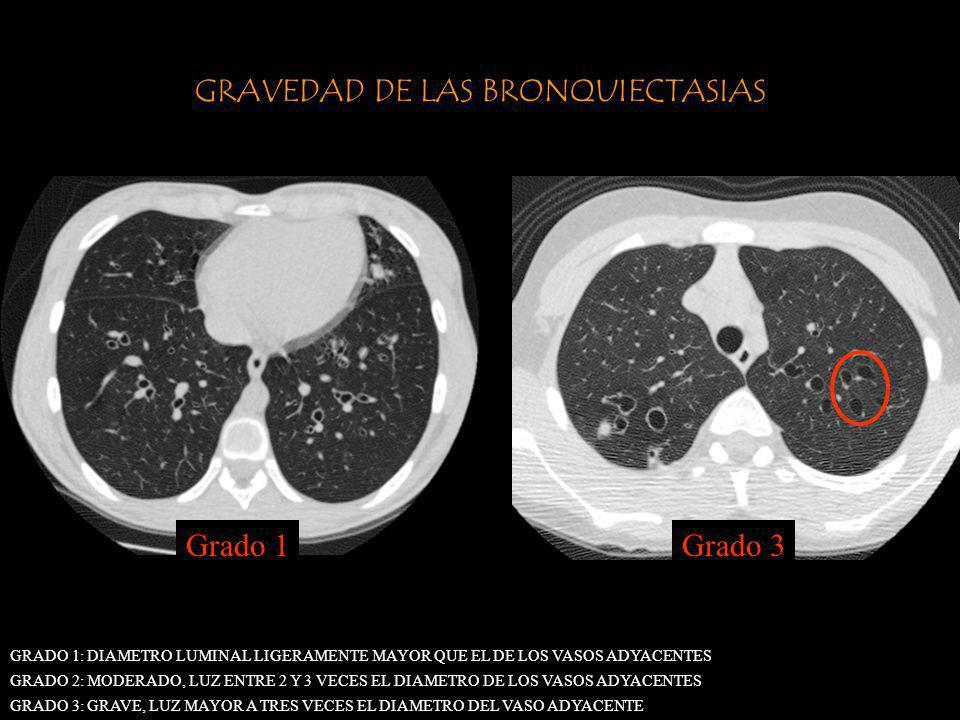 GRAVEDAD DE LAS BRONQUIECTASIAS GRADO 1: DIAMETRO LUMINAL LIGERAMENTE MAYOR QUE EL DE LOS VASOS ADYACENTES GRADO 2: MODERADO, LUZ ENTRE 2 Y 3 VECES EL