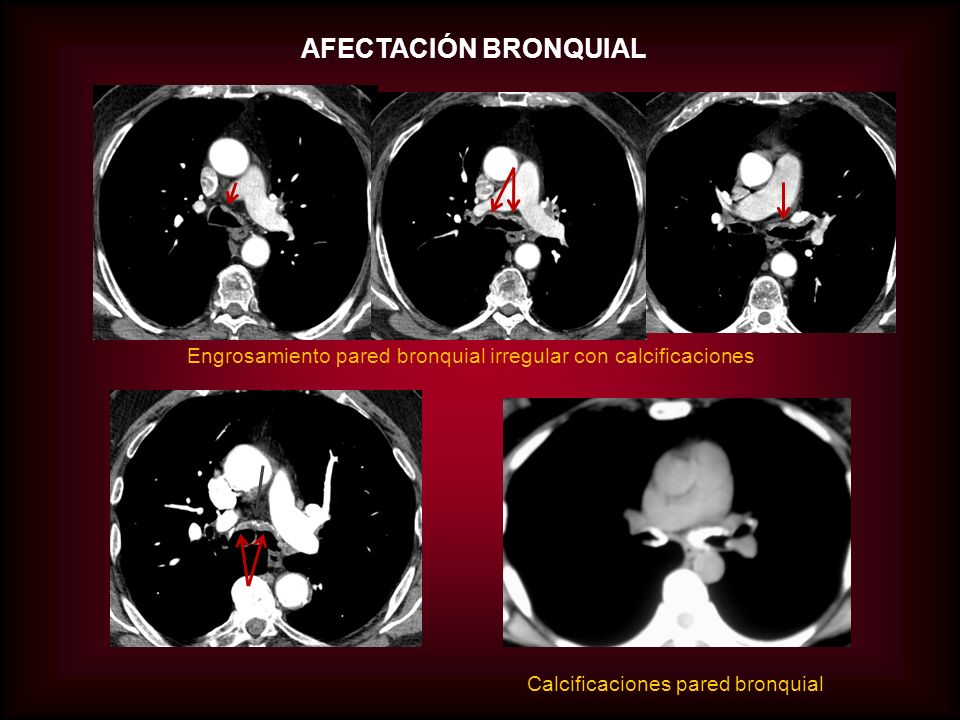 AFECTACIÓN BRONQUIAL Engrosamiento pared bronquial con calcificaciones que distorsionan la luz TCAR: parénquima pulmonar normal