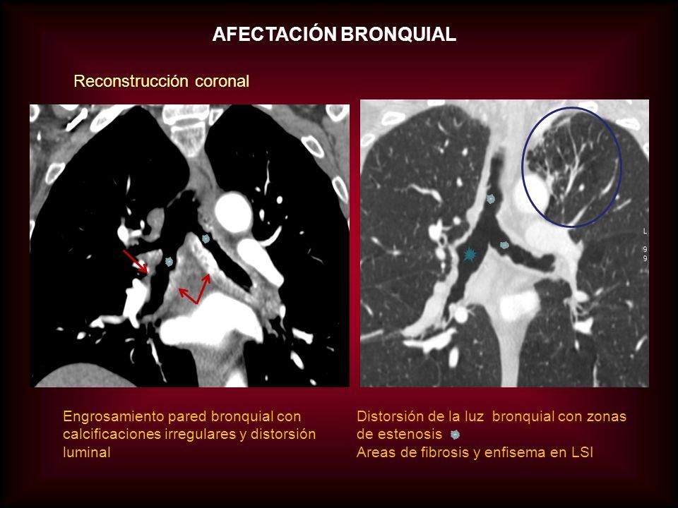 AFECTACIÓN BRONQUIAL Distorsión de la luz bronquial con zonas de estenosis Areas de fibrosis y enfisema en LSI Engrosamiento pared bronquial con calci