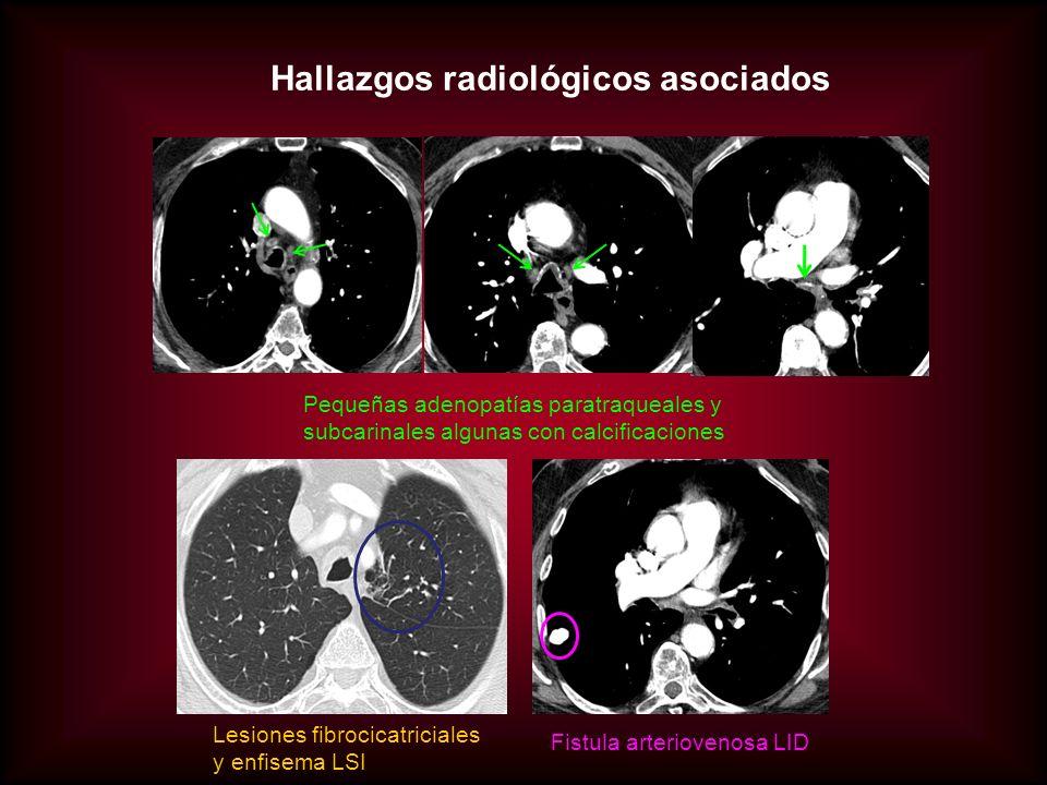 Hallazgos radiológicos asociados Pequeñas adenopatías paratraqueales y subcarinales algunas con calcificaciones Lesiones fibrocicatriciales y enfisema