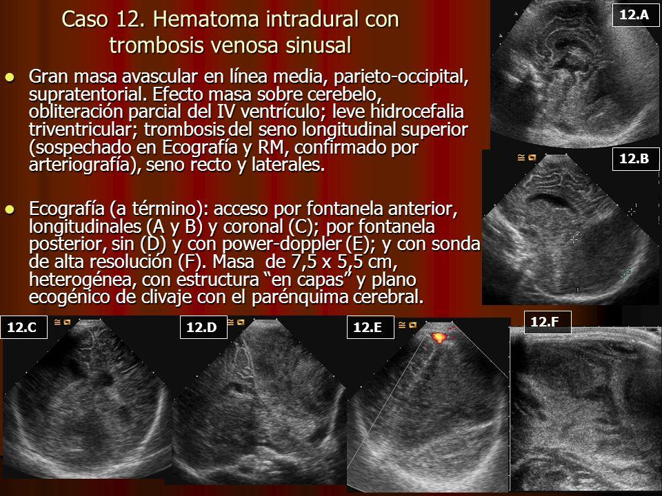 Gran masa avascular en línea media, parieto-occipital, supratentorial. Efecto masa sobre cerebelo, obliteración parcial del IV ventrículo; leve hidroc