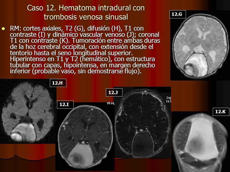 Caso 12. Hematoma intradural con trombosis venosa sinusal RM: cortes axiales, T2 (G), difusión (H), T1 con contraste (I) y dinámico vascular venoso (J