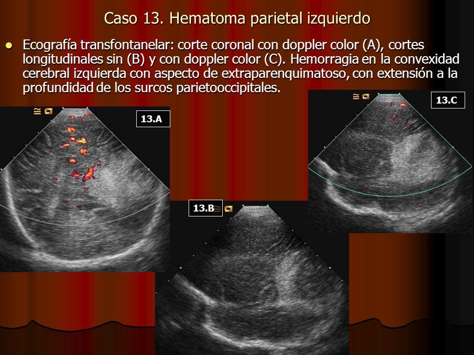 Caso 13. Hematoma parietal izquierdo Ecografía transfontanelar: corte coronal con doppler color (A), cortes longitudinales sin (B) y con doppler color