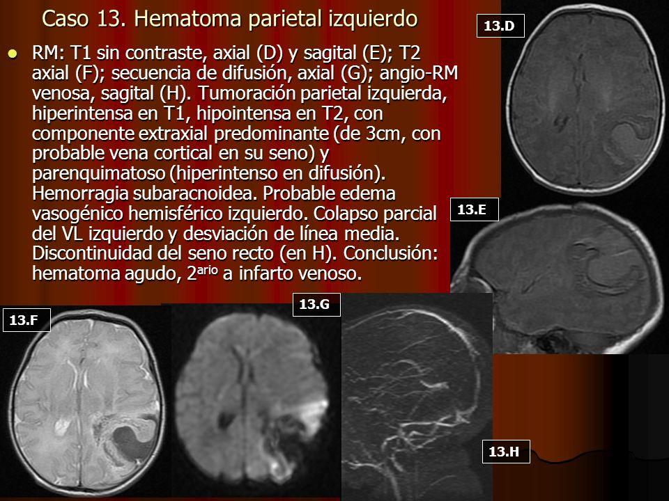 Caso 13. Hematoma parietal izquierdo RM: T1 sin contraste, axial (D) y sagital (E); T2 axial (F); secuencia de difusión, axial (G); angio-RM venosa, s