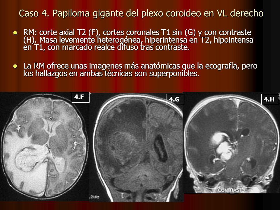 RM: corte axial T2 (F), cortes coronales T1 sin (G) y con contraste (H). Masa levemente heterogénea, hiperintensa en T2, hipointensa en T1, con marcad